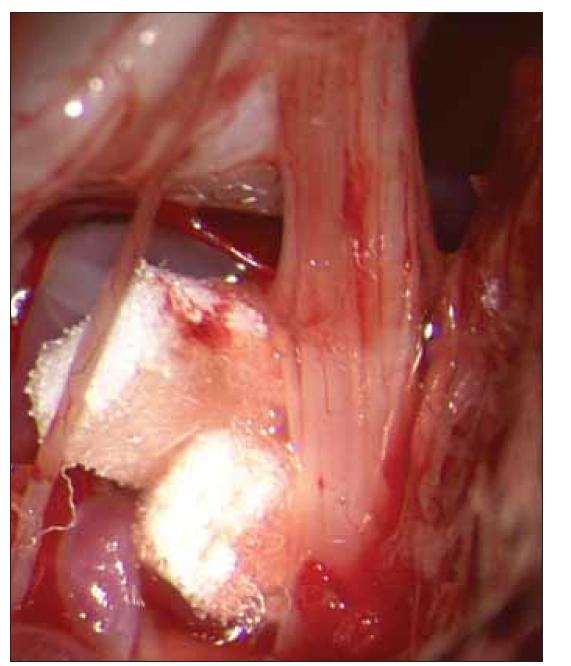 Mikrovaskulární dekomprese. Konflikt zrušen pomocí dvou teflonových destiček.<br> Fig. 2. Microvascular decompresion. Conflict has been eliminated using two teflon patches.