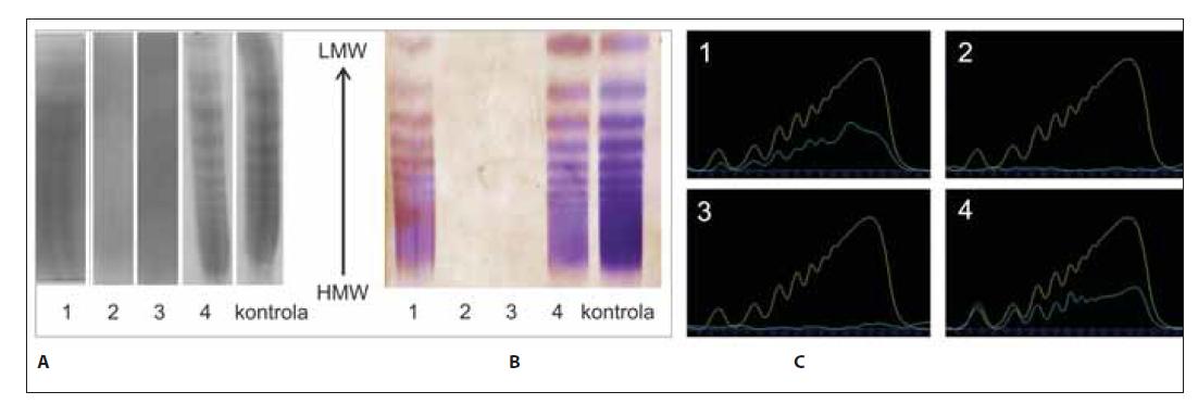 Analýza multimérov vWF vzoriek č. 1–4 a kontroly. (A) Klasická – manuálna metóda; (B) poloautomatickým prístrojom Hydrasys; (C) denzitometrické vyhodnotenie.