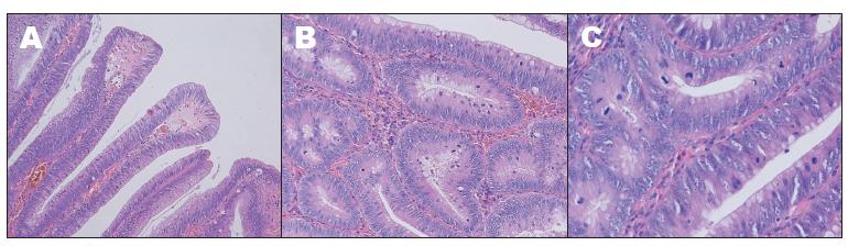 Histologické nálezy, barvení hematoxylin-eosinem: A – zvětšení 100x, B – zvětšení 200x, C – zvětšení 400x.