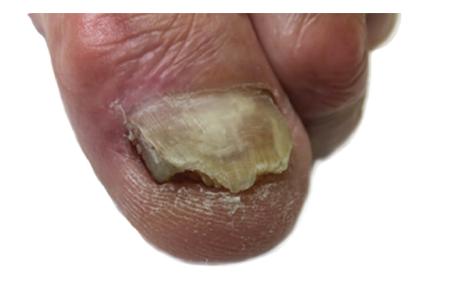a. Nehty dolní končetiny před aplikací NTP: postižení nehtové ploténky v celém rozsahu, volný okraj nehtu nerovný, se známkami hyperkeratózy a drolení, na mediální straně nehtové ploténky se vyskytují známky rozštěpu a zarůstání