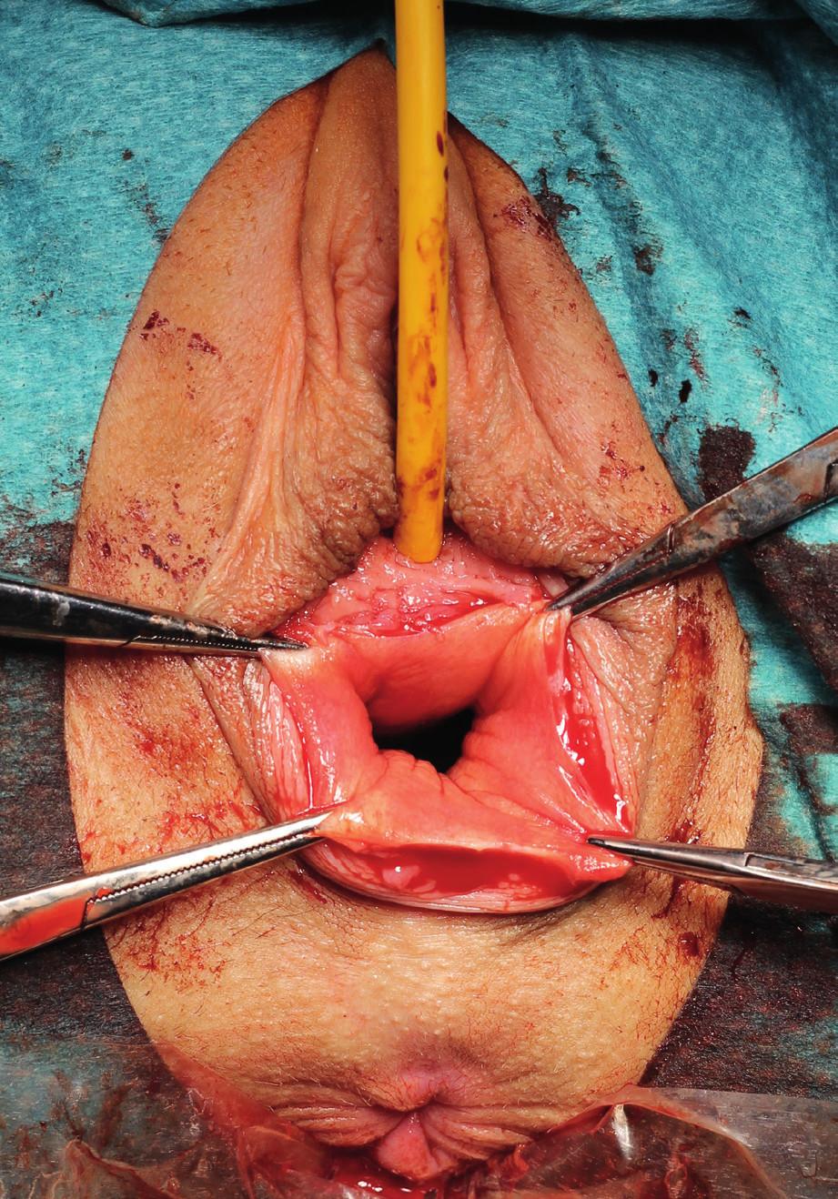 Peroperační snímek fixace vaginální stěny peany