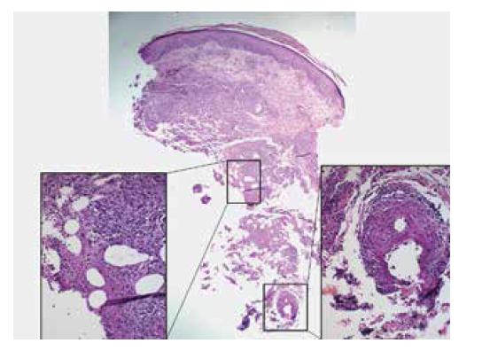 Lobulární nekrotizující panikulitida s vaskulitidou u pacientky s nodulární vaskulitidou<br> Přehledový snímek zvětšeno 40x, detail nekrotizující panikulitidy a obliterované arterie zvětšeno 200x.