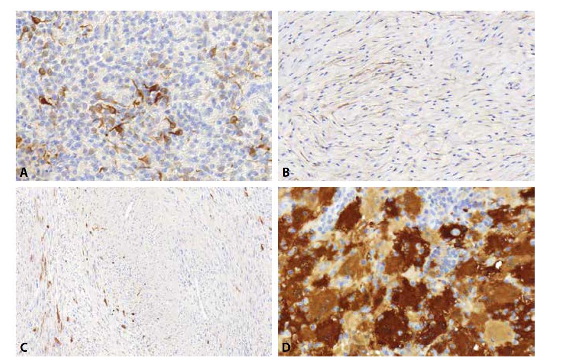 Zhruba polovina obrovskobuněčných tumorů šlachové pochvy exprimuje desmin v ojedinělých objemných buňkách s dendritickými výběžky (A). Při hodnocení barvení EMA v perineurálních lézích je důležité pamatovat na často velmi slabou expresi této protilátky. Její reaktivitu je proto nutné hodnotit obzvlášť důkladně při větším zvětšení (B). Maligní tumor z pochev periferních nervů (MPNST) bývá S100 pozitivní spíše místy (C) a zhruba polovina případů je dokonce zcela negativní, zatímco difúzní exprese je přítomna spíše zřídka. U Rosai-Dorfmanovi choroby je užitečná nejen samotná S100 pozitivita nádorových buněk, ale i negativita lymfoidních buněk, které byly nádorovými buňkami pozřeny a nacházejí se v jejich cytoplazmě; dochází zde k tzv. emperipoléze (D).