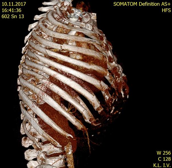 MD CT hrudníku u zraněného s polytraumatem ve věku > 65 let s nálezem blokové zlomeniny žeber (3.–7. žebro vpravo)
