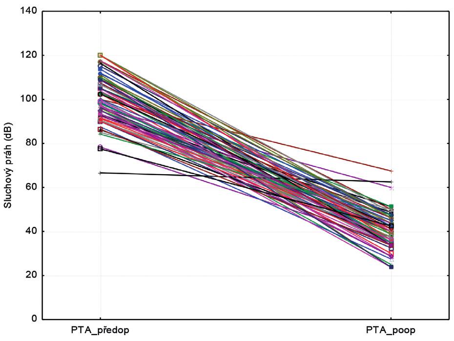 Srovnání před a pooperační tónové audiometrie (PTA).