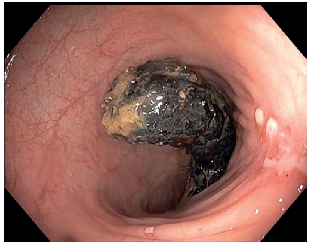 Fig. 1: The intraluminally migrated mesh is visualised by colonoscopy <br> Several whitish lesions caused by chronic irritation are visible on the endoluminal surface of the mucosa
