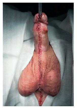 Pohled po ukončené druhé době uretroplastiky<br> Fig. 7. Final view after second stage of urethroplasty