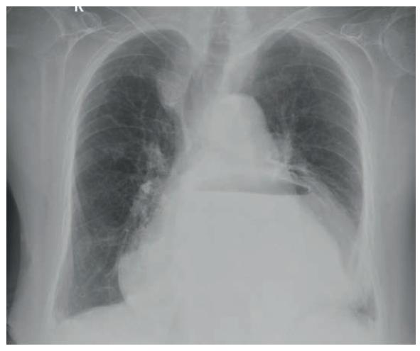 Volvulus žaludku na nativním zadopředním snímku hrudníku<br> Fig. 1. Stomach volvulus on plain posterior-anterior chest X-ray