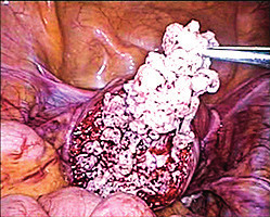 Peri-operatively suspicious tumor of uterine muscularity (verified later as leiomyoma with bizarre nuclei) during laparoscopic removal using endobag