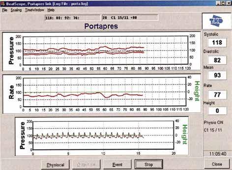 Monitorovanie záznamu (FMS). Použitý obrázok je z manuálu Portapresu – z monitorovania dospelého človeka.<br> Fig. 2. Portapres, the monitoring and control screen. The image used is from the Portapres User´s Guide – from monitoring of an adult.