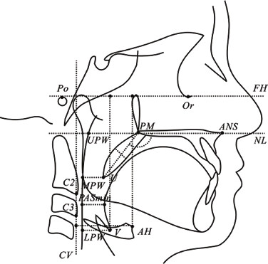 Kefalometrická analýza a měření HCD použitá při stanovování kefalometrických norem u dvanáctiletých dětí; převzato z Min GU a kol. [51]<br> Po – porion, Or – orbitale, ANS – anteriorní spina nasalis,<br> PM – pterygomaxilare, U – uvula, UPW – horní bod stěny faryngu, MPW – střední bod stěny faryngu, LPW – dolní část stěny faryngu, V – vallecula, AH – anteriorní část hyoidní kosti, C2 a C3 – druhý a třetí krční obratel, FH – frankfurtská horizontála, NL – nazální linie, CV – linie mezi C2 a C3<br> Fig. 2 Cephalometric analysis and UR tract measurement used in the determination of cephalometric standards in 12-year-olds; taken from Min GU et al. [51]<br> Po – porion, Or – orbitale, ANS – anterior nasal spine, PM – pterygo-maxillare, U – uvula, UPW – upper pharyngeal wall, MPW – middle pharyngeal wall, LPW – lower pharyngeal wall, V – vallecula, AH – anterior hyoid, C2 and C3 - 2nd and 3rd cervical vertebrae, FH – Frankort horizontal plane, NL – nasal line, CV – cervical vertebrae, the line joining the C2 and C3