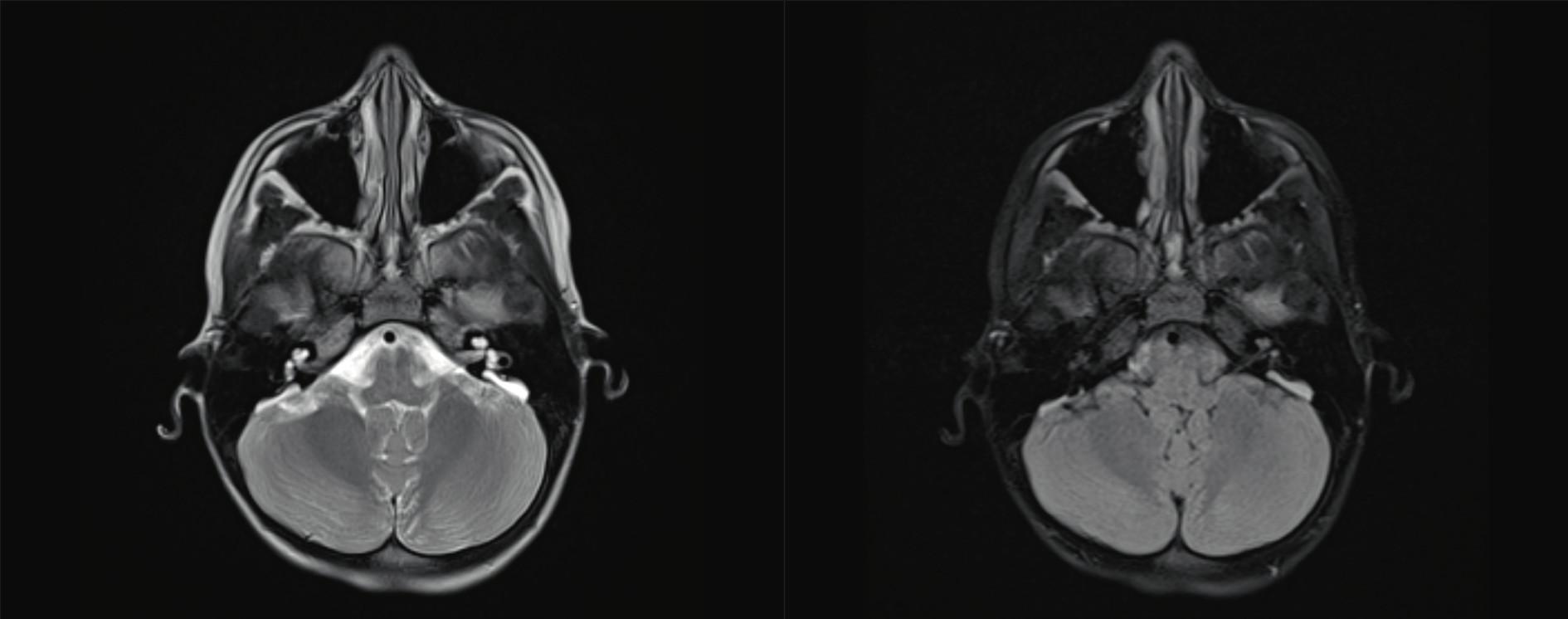 EVA syndrom, syndrom rozšířeného vestibulárního akvaduktu.<br> Fig. 5. Enlarget vestibular aquaeduct.