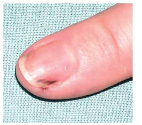 Třískovité hemoragie nehtů u pacientky s ANCA asociovanou vaskulitidou