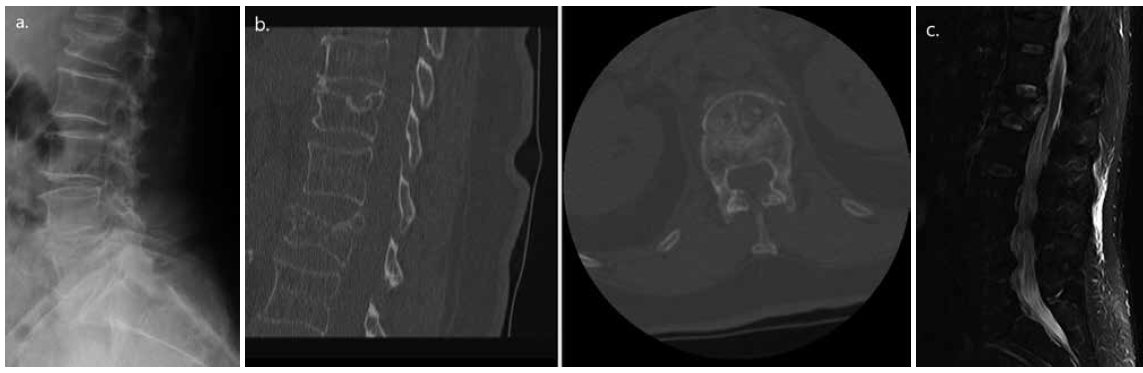 Osteoporotická komprese těla L1 charakteru kompletní tříštivé fraktury u 71leté pacientky (a. dle nativního RTG, b. CT a c. MR)<br> Fig. 1. Osteoporotic compression of vertebra L1, complete burst type in a 71 years old female patient (a. Native X-ray; b. CT; and c. MRI scan)