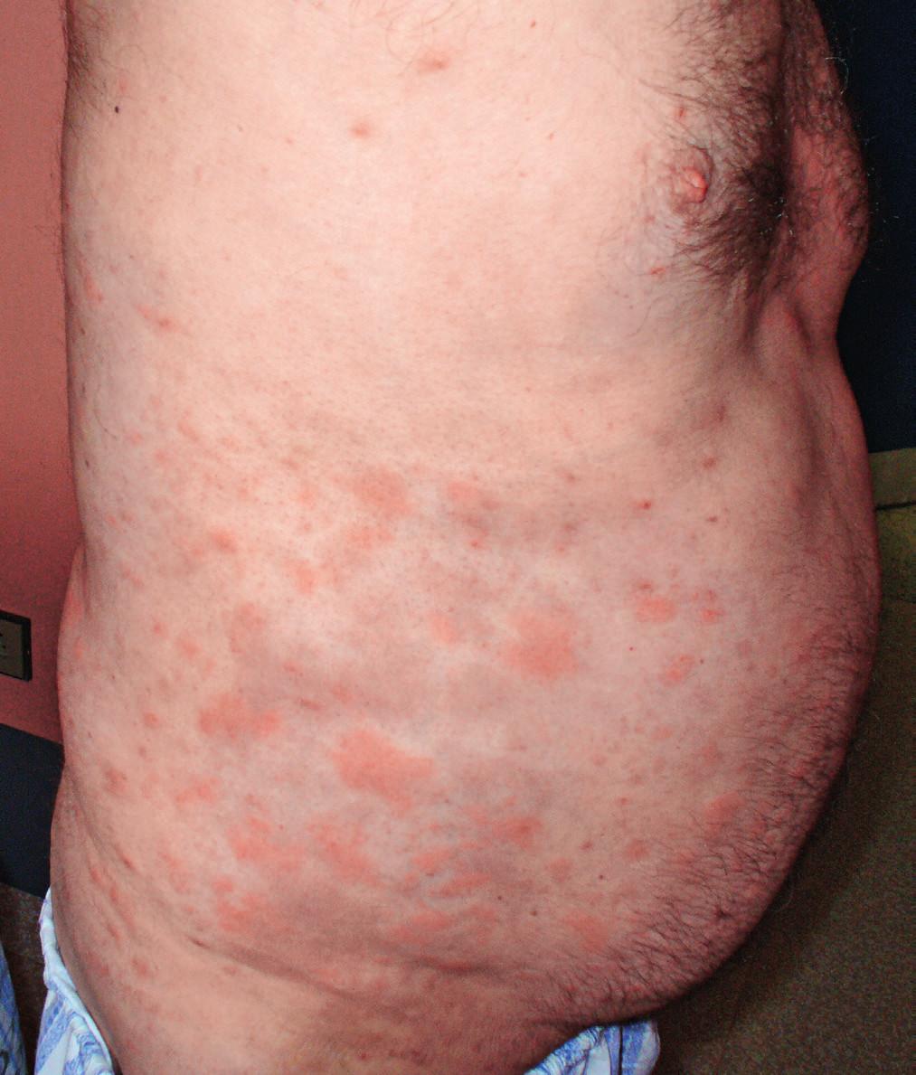 Snímek prvního pacienta s velkými kopřivkovými morfami před léčbou anakinrou