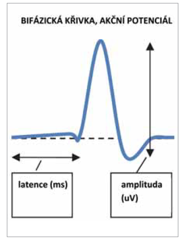 Schéma 2. Schéma AP, latence, amplituda.<br> Scheme 2. Scheme AP, latency, amplitude.