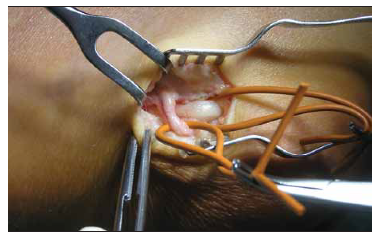 Větev nervus cutaneus antebrachii medialis přebíhající přes nervus ulnaris.<br> Fig. 1. Branch of the medial antebrachial cutaneus nerve crossing the ulnar nerve.