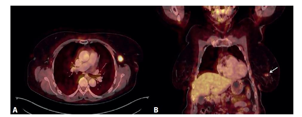 PET/CT vyšetření<br> A) Výrazný hypermetabolizmus glukózy v jedné lymfatické uzlině levé axily, axiální zobrazení. B) Mírná akumulace FDG v ložisku levého prsu (označeno šipkou), koronální zobrazení.<br> Fig. 7: PET/CT examination<br> A) Significant glucose hypermetabolism in one lymph node of the left axilla, axial view. B) Mild accumulation of FDG in the lesion of the left breast (marked by the arrow), coronal view.