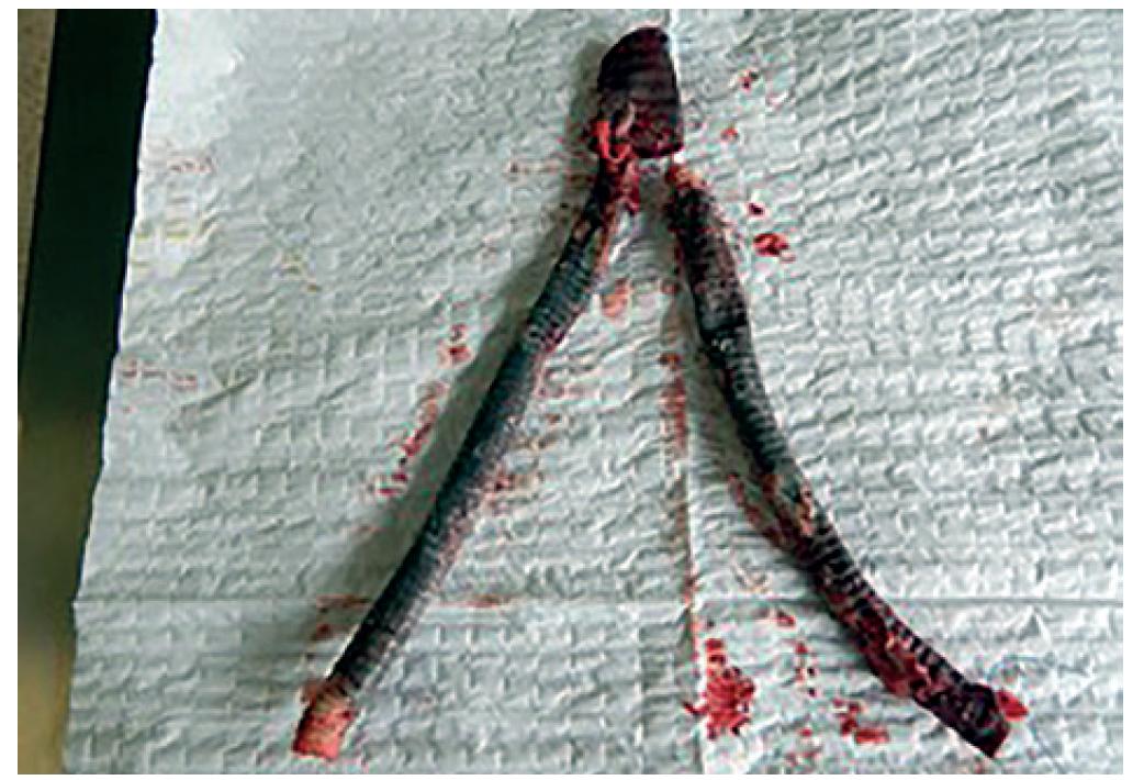 Explantovaná protéza ABF bypassu <br> Fig. 1: Explanted infected aortobifemoral prosthesis