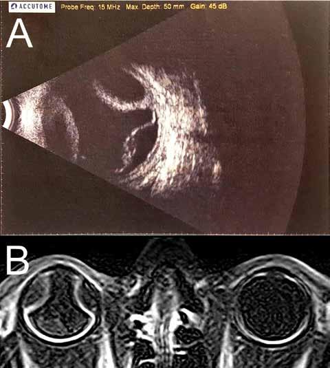 (A) Ultrazvuková sonografie bulbu pravého oka, B scan, listopad 2017. Shora ablace choroidey, zdola serózní odchlípení sítnice. (B) magnetická rezonance orbit, T1 vážený obraz, listopad 2017. Ablace choroidey a serózní odchlípení sítnice