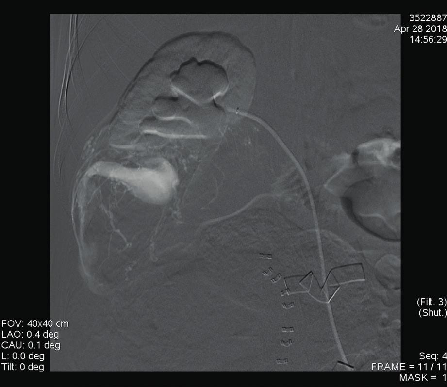 Digitální subtrakční angiografie a. renalis dextra: zobrazuje se patologická vaskularizace angiomyolipomu s AV zkratem s ektatickou odvodnou žilou [6]
