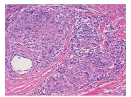 Sarkoidální granulomy u necrobiosis lipoidica (HE 200x)