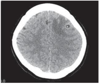 CT scan of the brain, transversal image. Round-shaped hypodense lesion in the left frontal region, sized 7 mm, with central dot-like hyperdensity; the lesion corresponds to neurocysticercosis. <br> Obr. 1. CT mozku, transverzální řez. Kulovité hypodenzní ložisko frontálně vlevo velikosti 7 mm, s centrální tečkovitou hyperdenzitou odpovídá neurocysticerkóze.