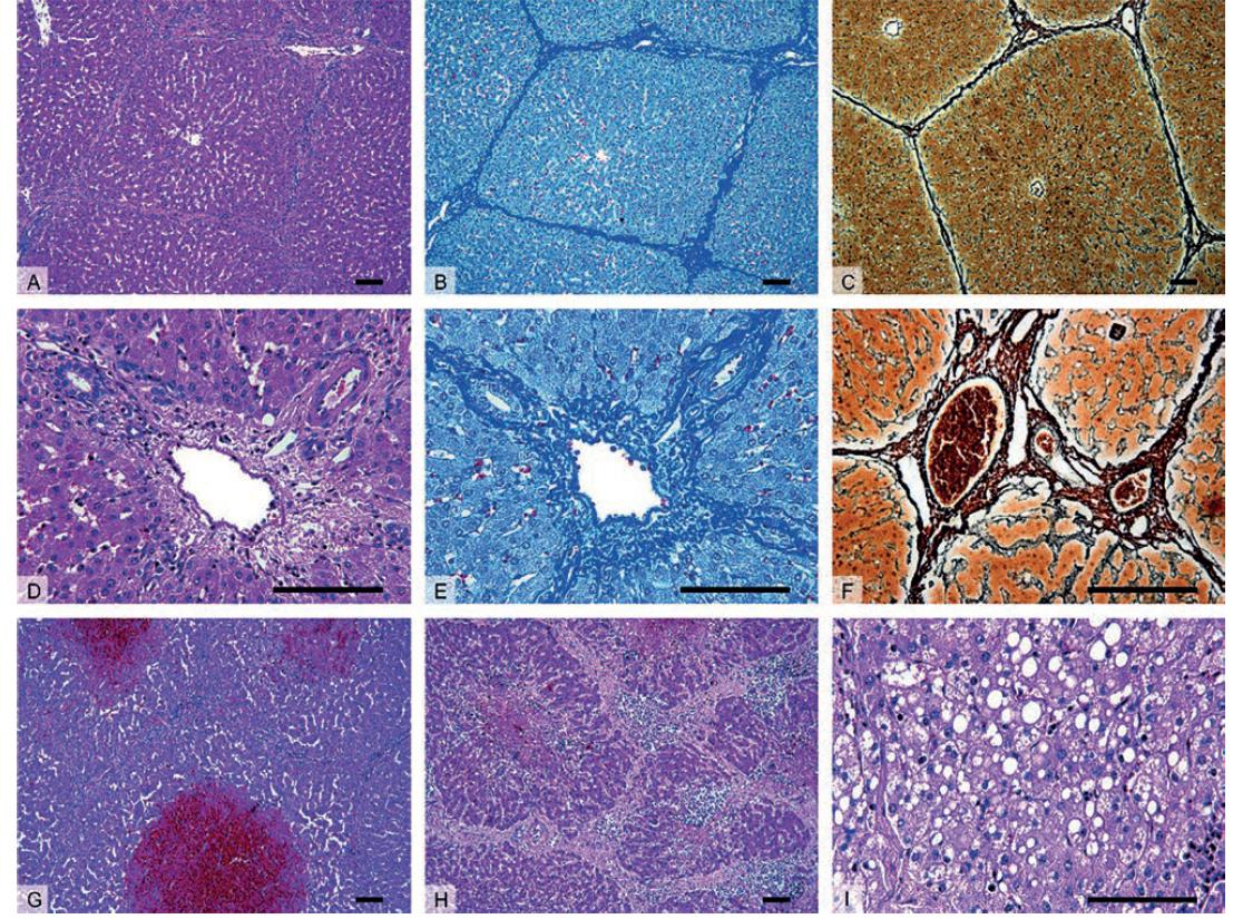 Histologický obraz zdravých (A–F) a patologicky změněných jater prasete (G–I)<br> A–C – Přehledné zvětšení zobrazující jaterní parenchym členěný v jednotlivé jaterní lalůčky, které jsou u prasete ohraničené oproti člověku významně větším množstvím vaziva.<br> D–F – Detail portobiliárních prostor obsahujících hepatickou trias – interlobulární větev a. hepatica propria, v. portae a žlučovodu.<br> G – Centrilobulární hemoragická nekróza u zvířete se sinusoidálním obstrukčním syndromem vyvolaným experimentální aplikací pyrrolizidinového alkaloidu monocrotalinu.<br> H – Nodulární transformace jaterní tkáně s porušenou mikrostrukturou jater a typicky zmnoženým interlobulárním vazivem u jaterní cirhózy.<br> I – Steatóza jater charakterizována nahromaděním tukových vakuol v cytoplazmě hepatocytů v důsledku toxického poškození jater.<br> Barvení: hematoxylin a eosin – přehledné barvení (A, D, G–I), anilinová modř a jádrová červeň – detekce kolagenního vaziva (B, E), stříbření (impregnační metoda) (C, F) – detekce retikulárních vláken. Měřítka: 100 μm.<br> Fig. 1: Histology of healthy (A–F) and diseased (G–I) porcine liver<br> A–C – The liver parenchyma divided into morphological hepatic lobules, in pigs the lobules are demarcated by a signifi cantly higher amount of connective tissue when compared to human.<br> D–F – Detail of portal tracts containing bile ducts and branches of the hepatic artery and portal vein surrounded by connective tissue.<br> G – Centrilobular hemorrhagic necrosis seen in animal with Sinusoidal Obstruction Syndrome, experiment included the application of alkaloid monocrotaline.<br> H – Cirrhotic liver histologically represented by nodular transformation of liver parenchyma with disruptions of liver microarchitecture and excessive amount of interlobular connective tissue.<br> I – Steatosis characterized by lipid droplets accumulation within hepatocytes caused by toxic liver injury.<br> Staining: hematoxylin and eosin staining (A, D, G–I), aniline blue s