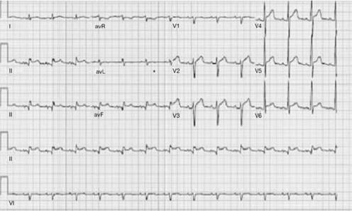 Elevácie ST v II, III, aVF, V5-V6 bez kontralaterálnych depresií ST na  EKG hodnotené ako inferolaterálny STEMI