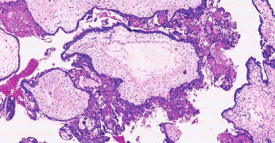 Histologický preparát – hematoxylin, eozin.<br> Kompletní mola hydatidosa s hydropicky zvětšenými choriovými klky a s centrální tvorbou cisteren. Nepravidelná, nahodilá proliferace vilózního trofoblastu.