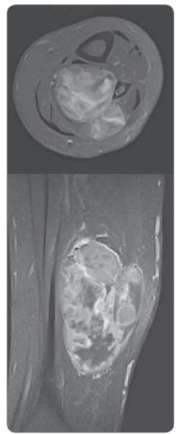 Magnetická rezonance sarkomu v laterální části bérce nad zevním kotníkem – vyšetření před hypertermickou izolovanou perfuzí končetiny (leden 2018).