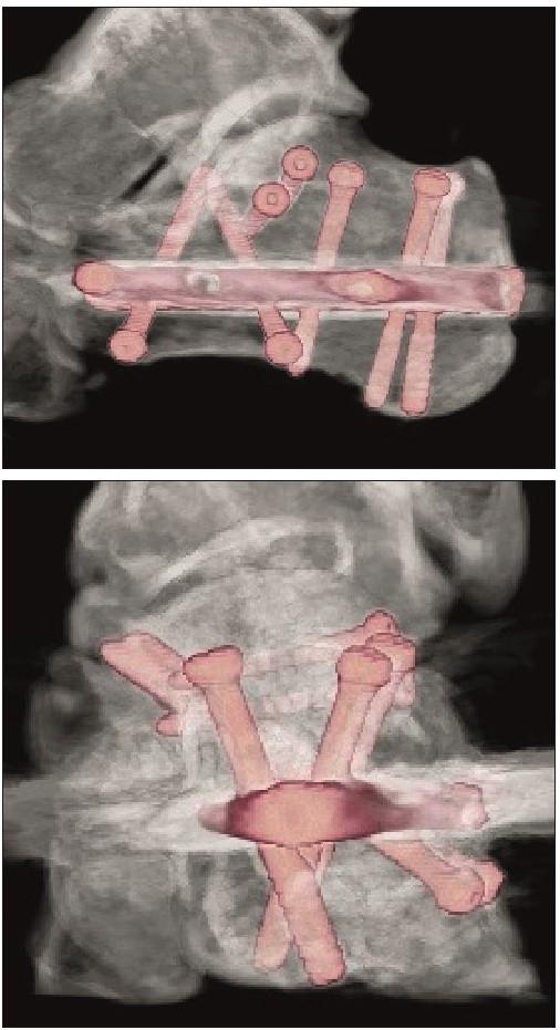 Pooperační VRT obrazy po osteosyntéze zlomeniny patní kosti hřebem C-nail