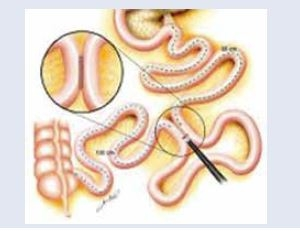 Parciálna jejunálna diverzia – jejúnoileálna anastomóza. Upravené podľa [17]