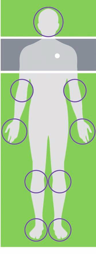 Vyšetření MR u pacientů s implantovaným funkčním vagovým stimulátorem. MR je možné provést v zelené zóně a s použitím lokálních radiofrekvenčních (RF) cívek. V šedé zóně se MR nesmí provádět.<br> Fig. 1. MRI in patients with an implanted vagal nerve stimulator. MRI can be safely performed in the green zone with local radiofrequency (RF) coils. Gray area is the MRI exclusion zone.