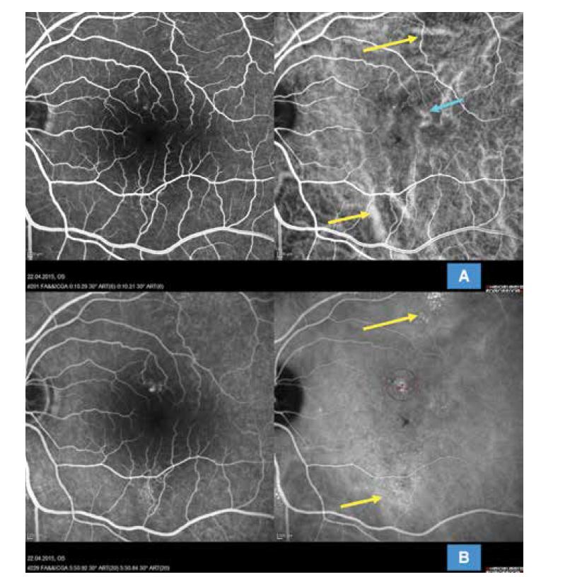 Multimodální zobrazení chronické formy centrální serózní chorioretinopatie u 52leté pacientky s extrafoveolárními ložisky (HRA-OCT Spectralis Heidelberg): (A) simultánní snímek fluorescenční a indocyaninové angiografie zobrazující časnou arteriovenózní fázi s výraznou dilatací choroidálních cév extrafoveolárně (žluté šipky) a perifoveolárně (modrá šipka); je patrné difuzní narušení choriokapilaris v centrální oblasti, snímek zároveň neprokazuje přítomnost choroidální neovaskularizace. (B) simultánní snímek fluorescenční a indocyaninové angiografie znázorňující pozdní venózní fázi angiogramu s vyznačenými ložisky difuzní hyperfluorescence zejména na indocyaninovém zobrazení (žluté šipky) a vyznačenou stopou pro redukovanou fotodynamickou terapii v místě difuzního aktivního ložiska (fialový kruh)