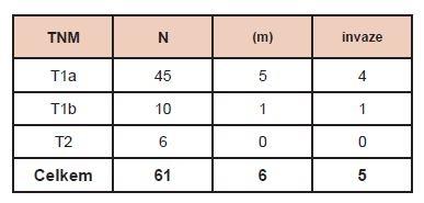 Charakteristika souboru pacientů. Vysvětlivky: TNM (Klasifikace zhoubných nádorů, 7. vydání, 2009, česká verze 2011), N – počet nemocných, (m) – multicentrický tumor, invaze – prorůstání do pouzdra tumoru.