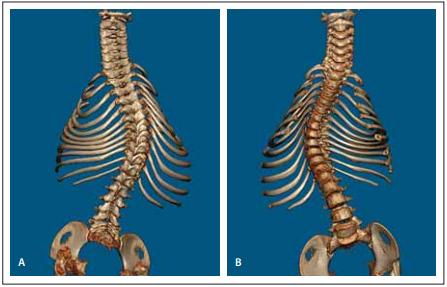 Předoperační vyšetření 3D CT celé páteře (A, B).<br> Fig. 2. Předoperační vyšetření 3D CT celé páteře (A, B).