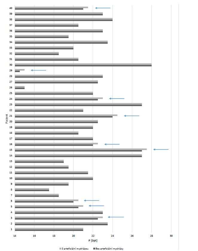 Vliv arteficiální mydriázy na výpočet dioptrické hodnoty (P) umělé nitrooční čočky pomocí vzorce Haigis u jednotlivých pacientů (šipkou jsou znázorněny hodnoty, u kterých došlo ke změně)