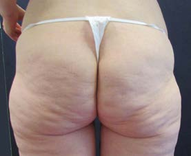 Gluteoplastika, 25letá pacientka po redukci hmotnosti o 45 kg – předoperační foto.