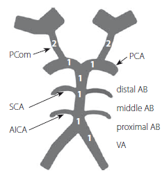 Basilar Artery on Computed Tomography