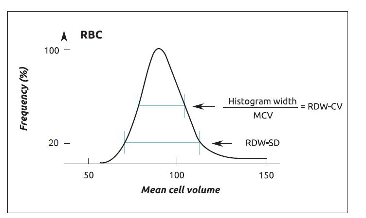 Odečet parametru RDW z histogramu RBC (zdroj: Med-Health.net [6]).<br> RBC – erytrocyty, RDW – šíře distribuce erytrocytů, CV – variační koefi cient,<br> SD – směrodatná odchylka