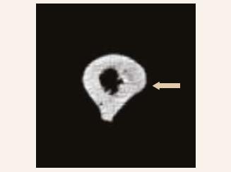CT-scan levé stehenní kosti (11. 1. 2019, vstupní): horizontálně probíhající vlasová linie v laterální části kortikalis ve střední třetině diafýzy levého femoru