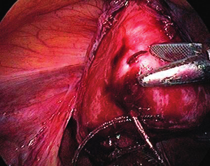 Implant fixation on vaginal stump