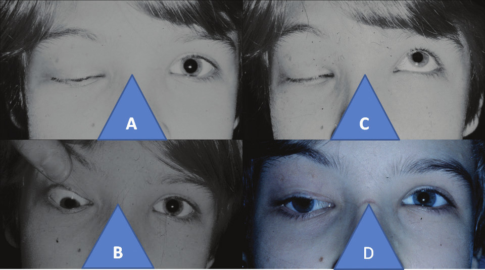 11-year-old girl with right-sided congenital fibrosis of extraocular muscles: closed ocular aperture in right eye (A), hypotropia in right eye with passive opening of ocular aperture (B), zero ability to open ocular aperture in right eye upon attempt at elevation (C), position of upper eyelid and eyeball in right eye four years after comprehensive triple surgical procedure according to cul-de-sac, Knapp procedure, according to Fox (D)