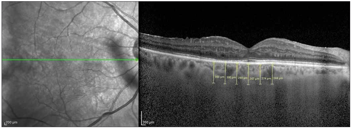 Choroidal thickness measurement at 6 points with 500-μ intervals on the optic coherence tomography section.<br>