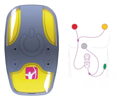 Externí epizodní záznamník s automatickou detekcí poruch rytmu