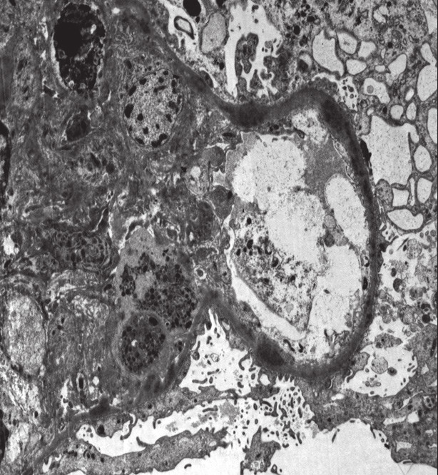 Histologický nález u pacientky č. 2. Elektronová mikroskopie s nálezem denzních depozit.<br> Fig. 3. Histological findings in patient 2. Electron microscopy with the findings of dense deposits.