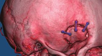 Minipterionální kraniotomie na CTA.<br> Fig. 5. Minipterional craniotomy on CTA.