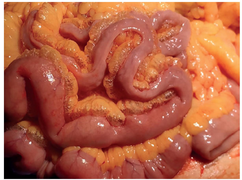 Peroperační nález – pneumomezenterium <br> Fig. 3: Peroperative finding – pneumomesenterium
