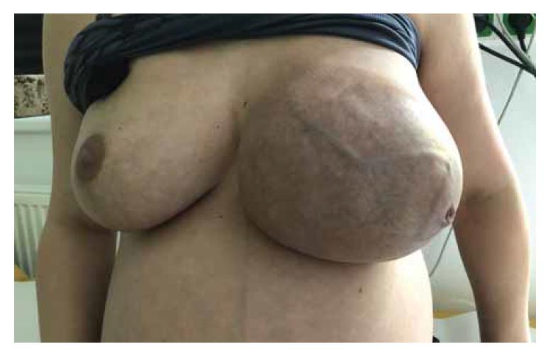Obrovský fibroadenom prsu ve 35. týdnu těhotenství – významná asymetrie prsou<br> Fig. 1. Giant breast fibroadenoma in 35th week of pregnancy – breast asymmetry.